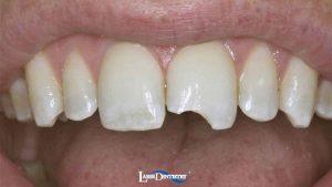 broken-tooth-cosmetic-bonding-feature