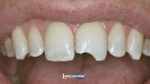 Before-Tooth-Colored-Filling-featured