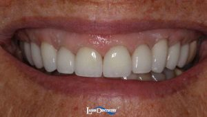 Feature-Cosmetic-Makeover-with-Crowns-and-Veneers-2