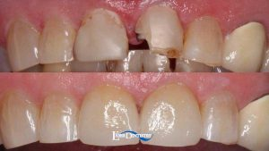 Porcelain-Crowns-cracked-feature