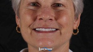 before-after-porcelain-veneers-1-feature